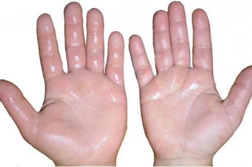 Svullna händer