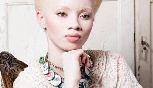 Albinism: Historien om modellen Thando Hopa