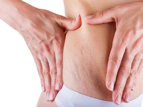Använd huskurer för att minska röda och vita hudbristningar