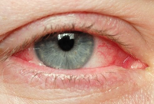 Irriterade-ögon