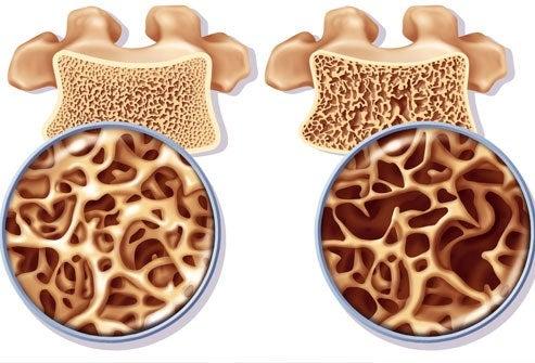 Övningar som behandlar och förebygger osteoporos