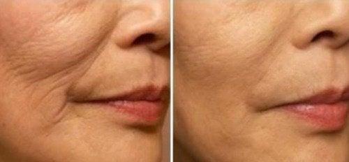 Förebygga rynkor och fina linjer i ansiktet