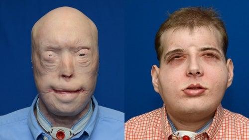 En 41-årig brandman en komplett ansiktstransplantation