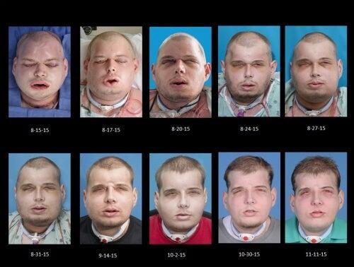 den mest kompletta ansiktstransplantationen