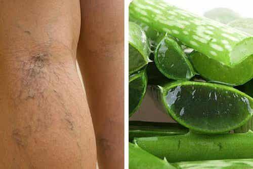 Använd aloe vera för att behandla bensår