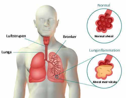 Lunginflammation: symptom och 4 effektiva huskurer