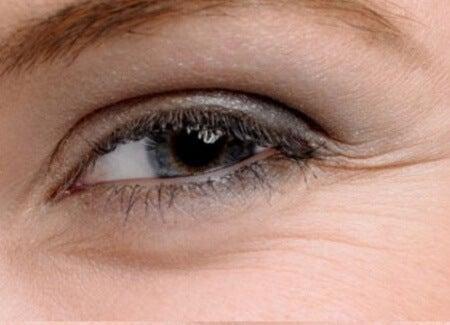 Se till att blinka ordentligt