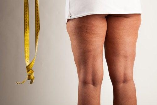 Kanel hjälper dig att bli av med celluliter