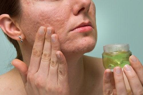 Person applicerar aloe vera gel oå ansikte