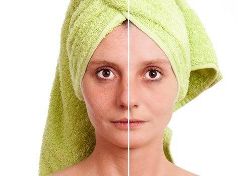 Skillnaden efter hudvård