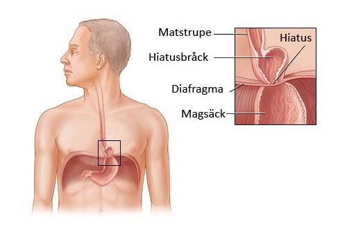 Diafragmabråck kost