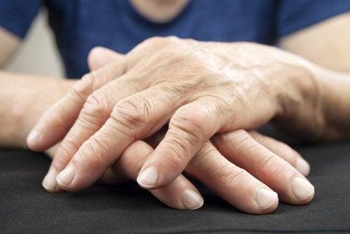 Länk mellan ledsmärta och tarmbakterier