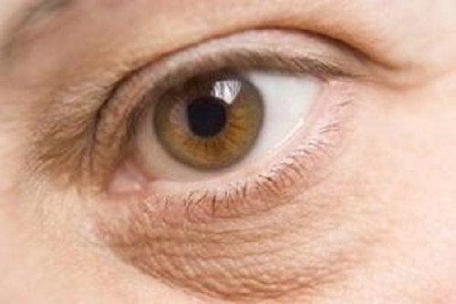 torr hud under ögonen