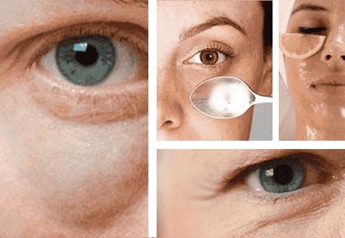 Enkla tips för att få bort påsar under ögonen