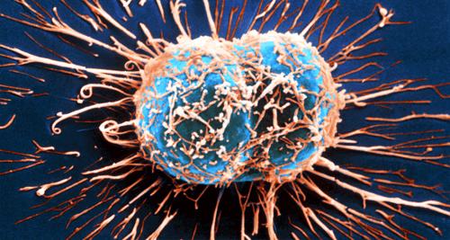 Symptom-på-cancer