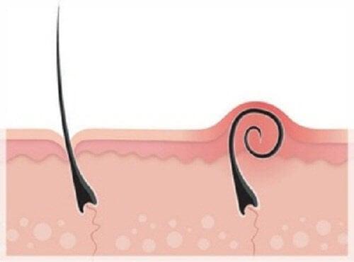 invuxna hårstrån