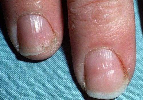 Tänker på anledningarna till varför dina naglar är svaga