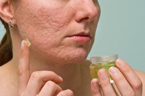 honung och kanel mot acne