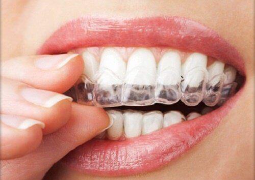 4 effektiva kurer för att motverka tandgnissling
