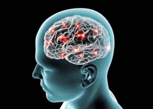 Hjärnan hos människan