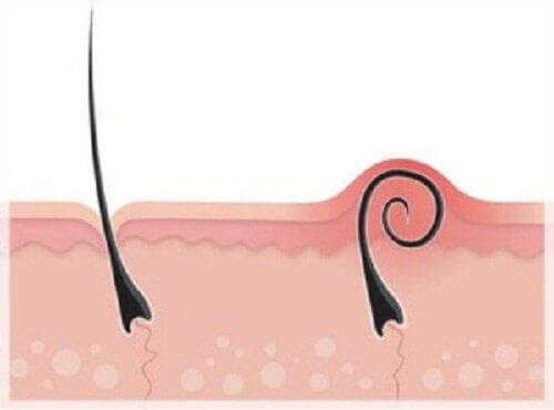 Inåtväxta hårstrån