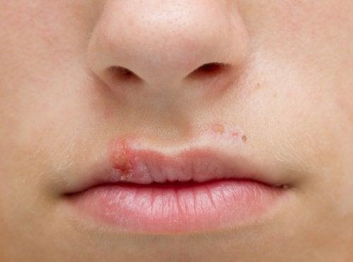 början på munsår
