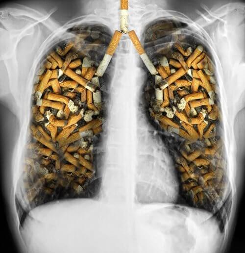 Lungor hos rökare