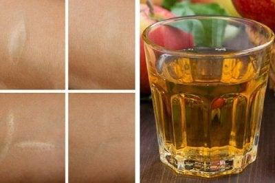 Antioxidant tonic mot rynkor, brännmärken och sår
