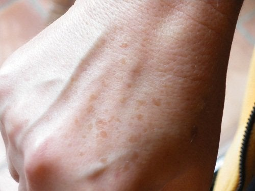 Åldersfläckar på handen