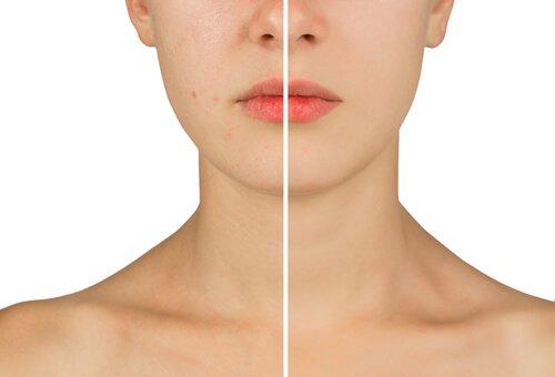 Ansikte och hals