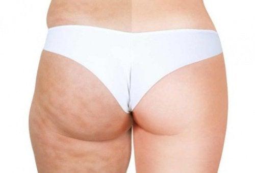 Celluliter-före-efter