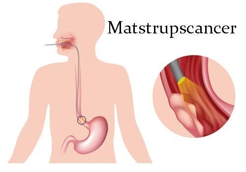 Matstrupscancer