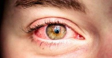 Röda-ögon
