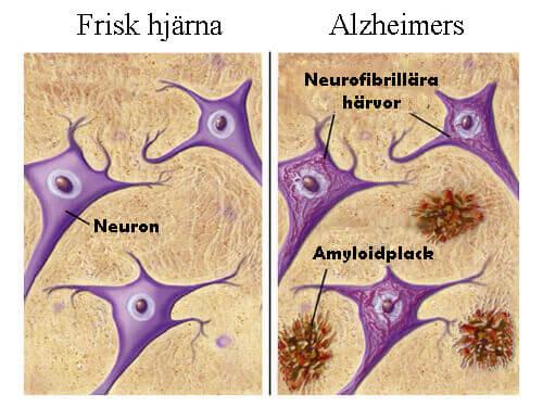 Livsmedel som skyddar mot Alzheimers