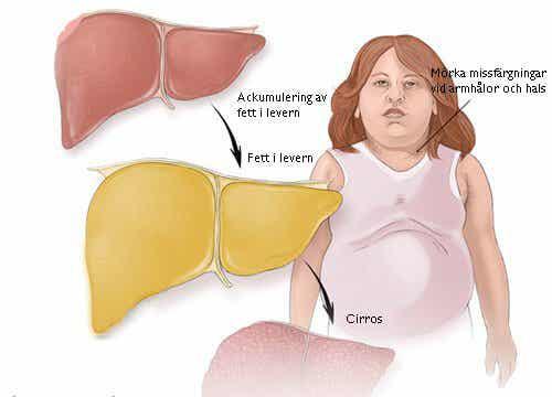 Fett i levern: vad är det och vilka är symtomen?