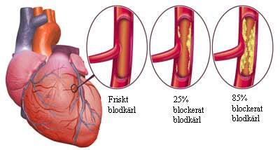 Svullna ben, anklar och vener i nacken är symtom på hjärtsvikt