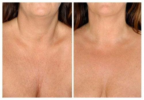 De bästa naturliga behandlingarna för huden på halsen