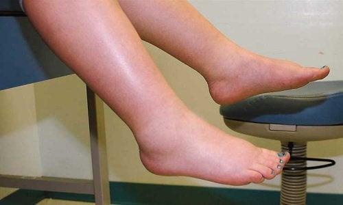 vätska i benen och fötterna