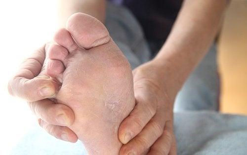 fotsvamp eller torra fötter