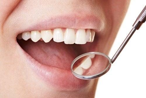 Motverka plack på tänderna hemma