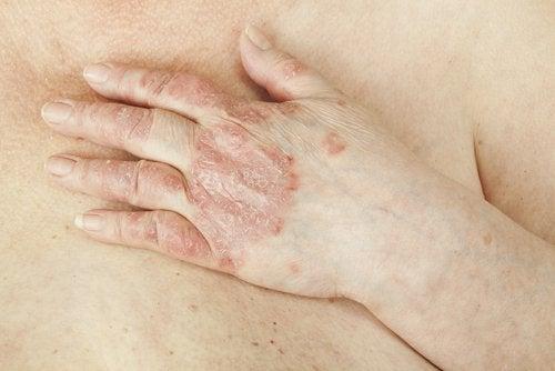 Psoriasis och eksem kan också orsaka vaginal klåda