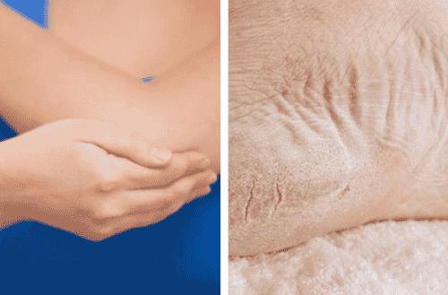 Behandla torra armbågar och fötter på en vecka