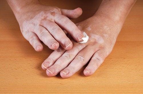 Vitiligo: Vad är orsaken och hur behandlar man det?