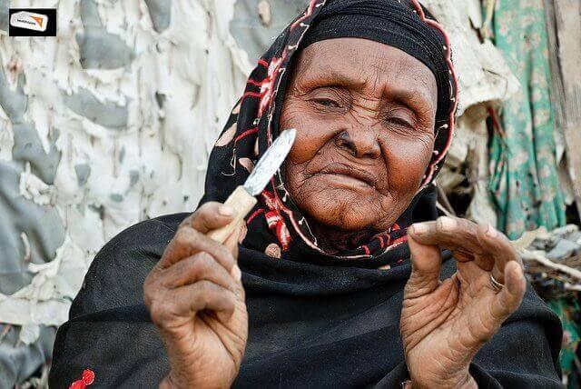 könsstympning