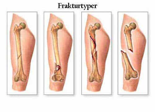 De 5 främsta symtomen på skelettcancer