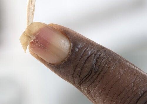 Skör nagel