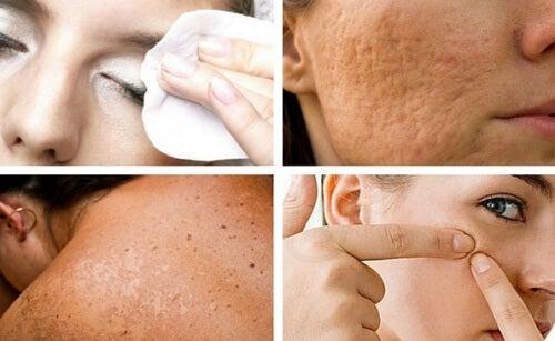 7 vanor som skadar din hud