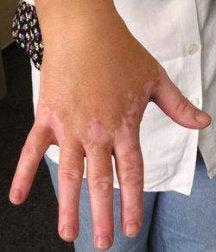 Vitiligo på handen