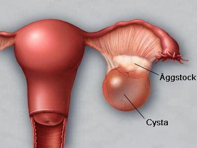kramp i äggstockarna gravid