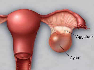 5 saker som påverkar äggstockarna
